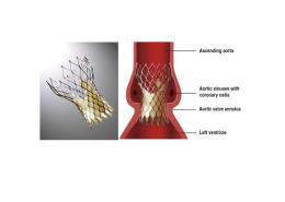 Transcatheter Aortic Valve Replacement (TAVR) CoreValve Device