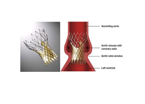 Cardiac Procedures Dr Steven K Rowe Md Interventional